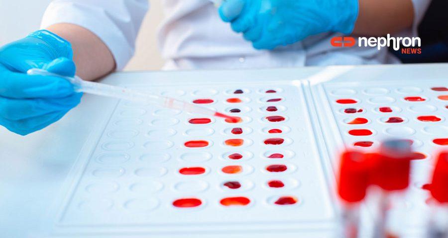 ερευνητής με δειγματα αίματος