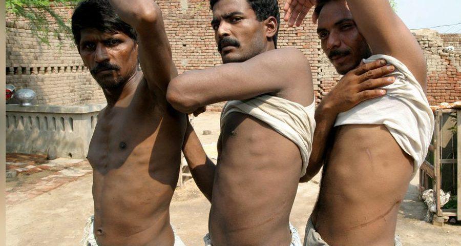 3 άντρες δείχνουν τις τομές τους