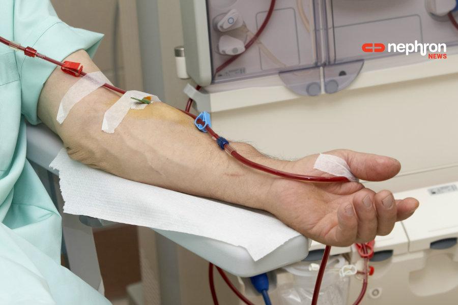 αιμοκάθαρση