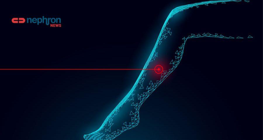 leg thrombosis