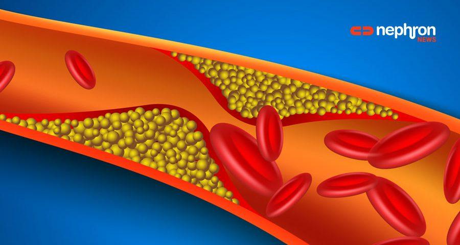 αγγείο με χοληστερίνη