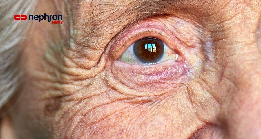 λεπτομέρεια ηλικιωμένης