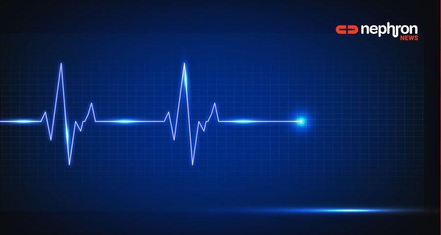 καρδιογραφημα