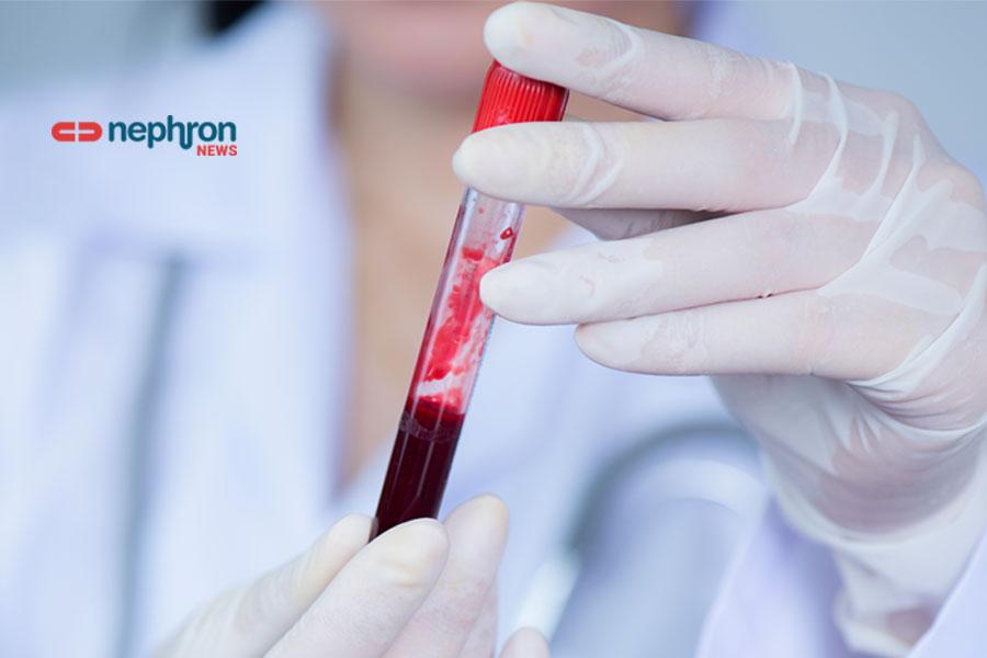 γιατρός κραταει μπουκαλάκι με αίμα