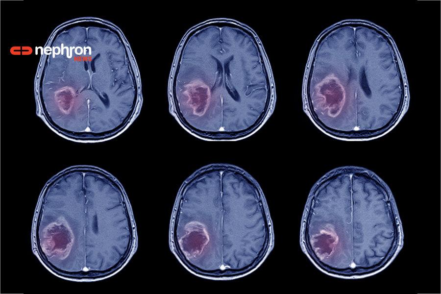 αξονική εγκεφαλικου -εγκεφαλικο επεισόδιο