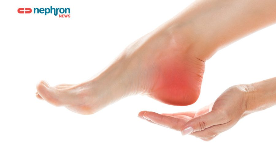 γυναικείο πόδι με πόνο στη φτέρνα