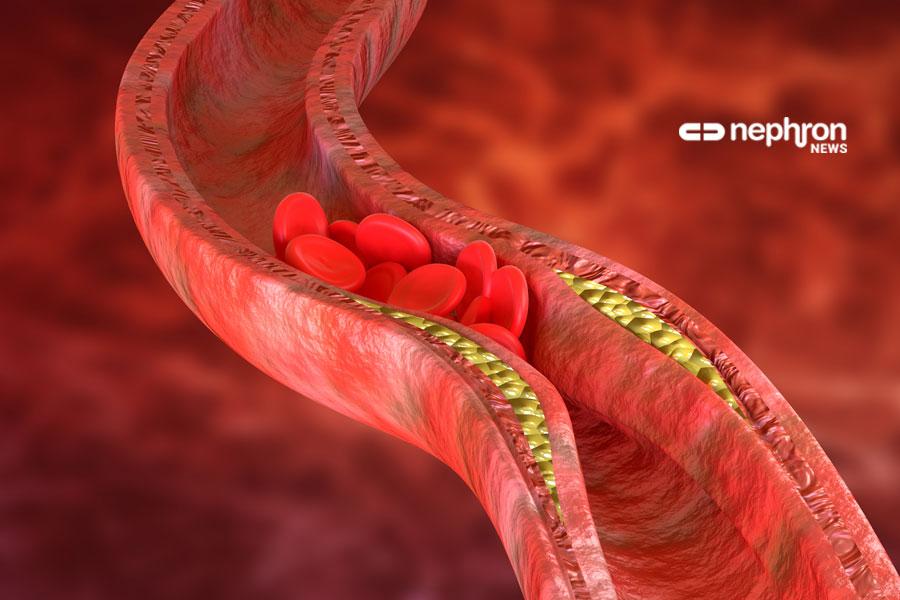 Όσα περισσότερα χρόνια κάποιος έχει υψηλή «κακή» χοληστερίνη